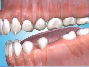 minor oral surgery